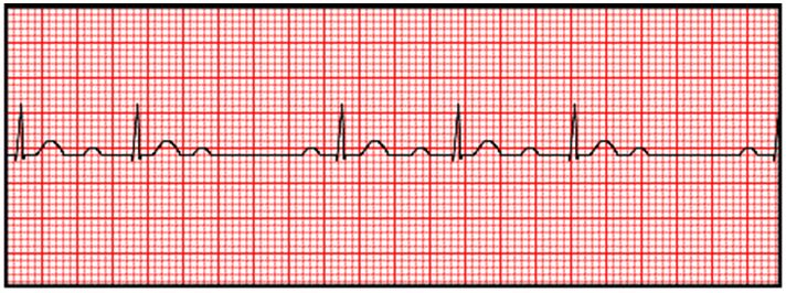 Free Certified Cardiographic Technician (CCT) Practice Test